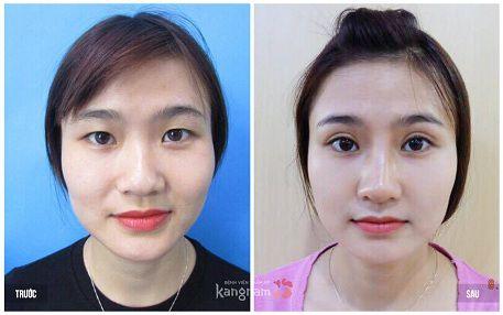 Kết quả chỉnh sửa để có đôi mắt đẹp tại Kangnam