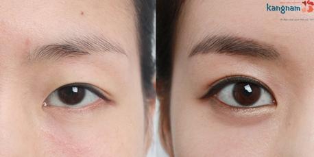cách làm mắt to tròn hơn 3