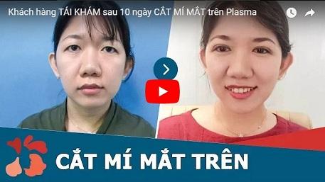 cắt mí mắt tại kangnam