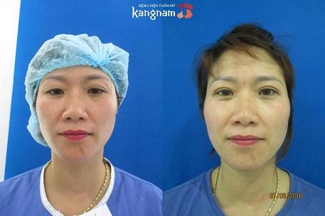 cắt mắt kangnam