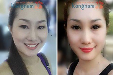 Chị Trần Như Ngọc thay đổi như thế nào sau chỉnh sửa mắt sụp mí tại Kangnam?
