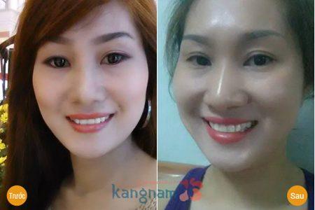 Chị Như Ngọc đã thành công với cách làm hết sụp mí mắt được chuyên gia chia sẻ
