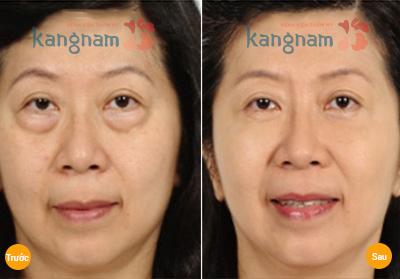 Kết quả chữa mắt bị bọng to tại Kangnam
