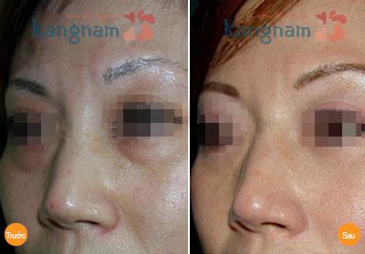 Kết quả xóa mắt bị bọng to tại BVTM Kangnam