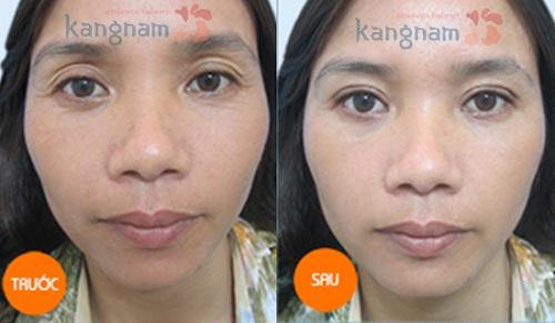 Chị Loan sau cắt bọng mắt to tại Kangnam