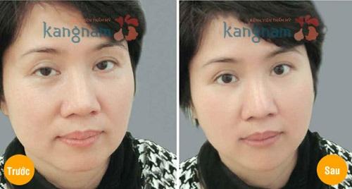 Ghi nhận kết quả trước và sau phẫu thuật lấy mỡ mí mắt và cắt da thừa tại Kangnam: 7
