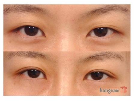 Ghi nhận kết quả trước và sau phẫu thuật lấy mỡ mí mắt và cắt da thừa tại Kangnam: 9