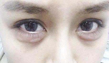 sưng bọng mắt dưới