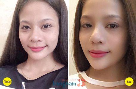 Chị Hồng Minh chia sẻ cách khắc phục bọng mắt bị sưng hiệu quả