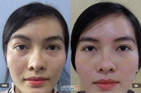 Kết quả khác biệt sau cắt bọng mỡ mắt tại Kangnam