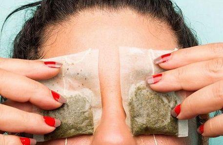 Cách giảm sưng bọng mắt nhờ túi trà hiệu quả