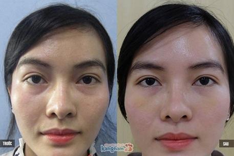 phẫu thuật lấy mỡ mí mắt và cắt da thừa 6