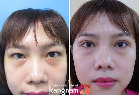 phẫu thuật lấy mỡ mí mắt và cắt da thừa 4