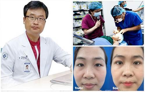 Phẫu thuật cắt mí mắt có hại không?1