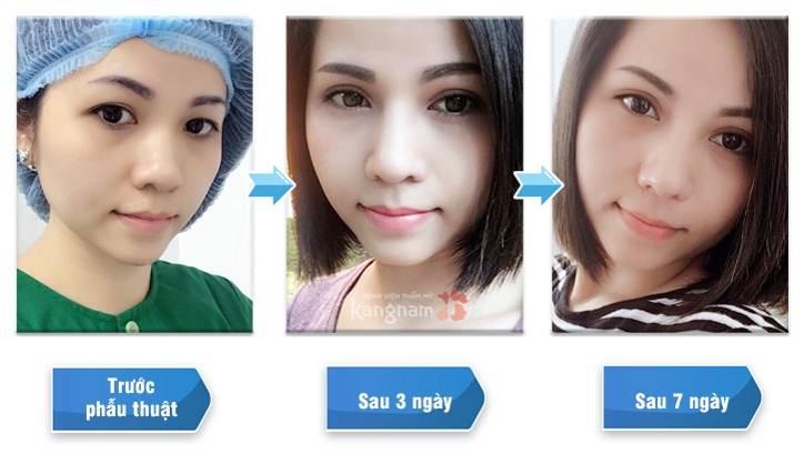 Phẫu thuật cắt mí mắt có hại không?22