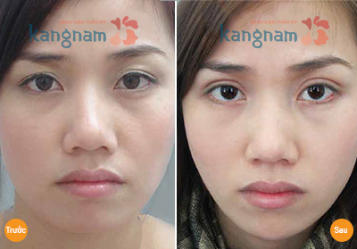 Giá phẫu thuật cắt mí mắt55