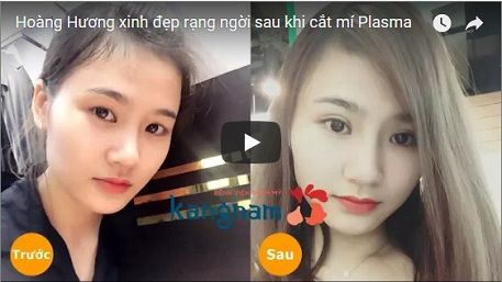 Khách hàng Kangnam chia sẻ lấy mỡ mí mắt có để lại sẹo không?