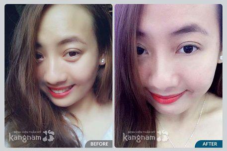 Khách hàng Kangnam chia sẻ kết quả sau lấy mỡ mí mắt dưới