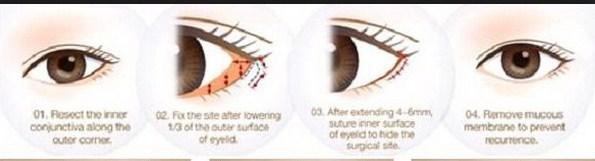cách chữa mắt xếch557689