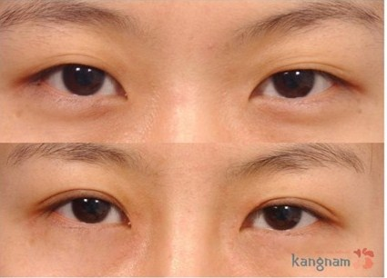 Cắt mí mắt có hại không?446