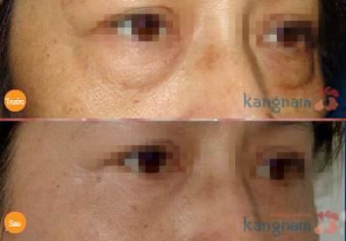 kinh nghiệm cắt bọng mỡ mắt356 5