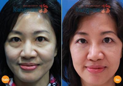 Khách hàng Kangnam chia sẻ cắt da thừa mí mắt ở đâu tốt nhất?