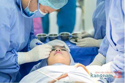 Bác sĩ chia sẻ cắt da thừa mí mắt ở đâu tốt nhất?
