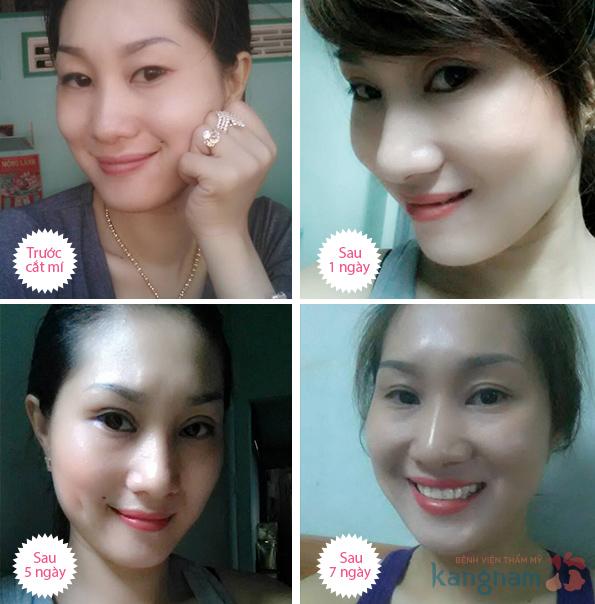 Cắt mí Eyelid ở Kangnam666