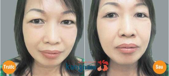 Phẫu thuật lấy mỡ mí mắt và cắt da thừa mí trên557