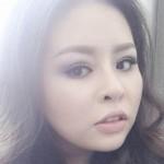 Ca sỹ The Voice Thái Bảo Trâm tỏa sáng sau cắt mí mắt