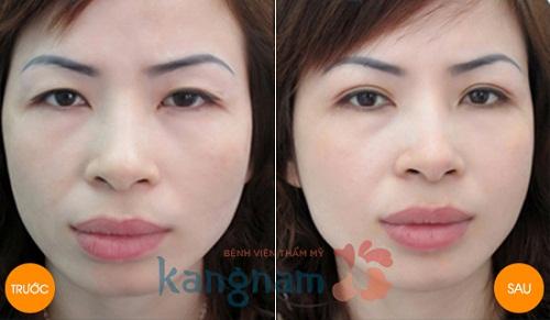 Kết quả cắt mí Eyelid tại Kangnam
