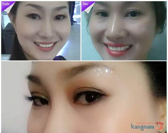 Khách hàng Kangnam chia sẻ cắt mí mắt Eyelid là gì?