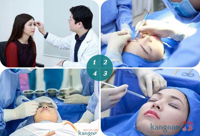 Quy trình cắt mí mắt Eyelid tại BVTM Kangnam