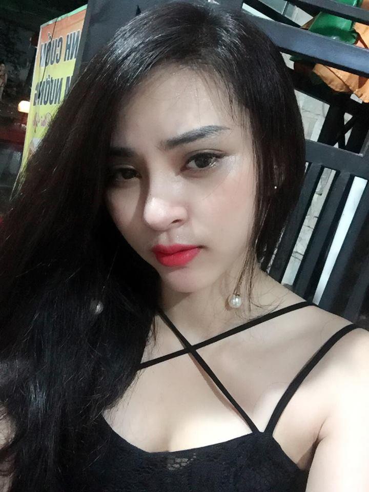 Kim Anh xinh đẹp hơn với kết quả chữa mắt sụp mí tại Kangnam