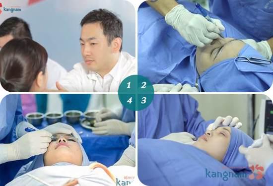 Quy trìn phẫu thuật thẩm mỹ mắt sụp mí tại Kangnam