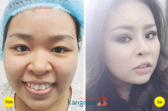 Kết quả cắt mí mắt tại Kangnam