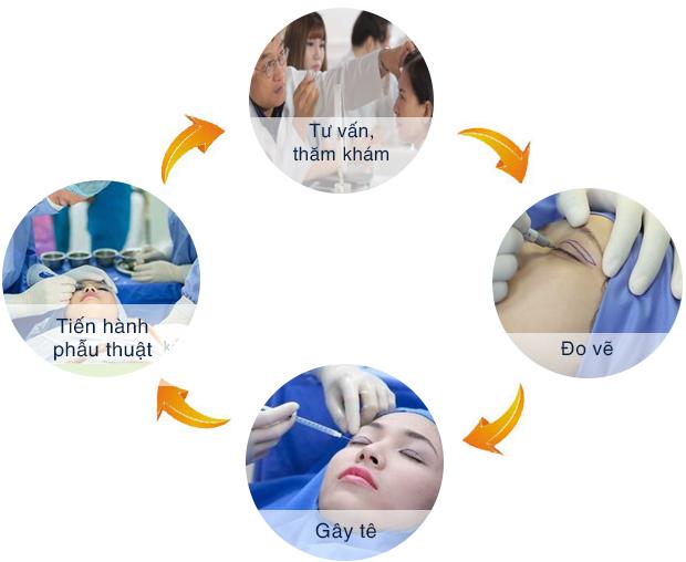 Quy trình tiến hành cắt mí mắt tại Kangnam