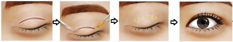 Mô hình cắt mí mắt tại Kangnam?