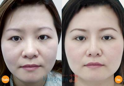 Hình ảnh khách hàng sau nâng cung chân mày tại Kangnam