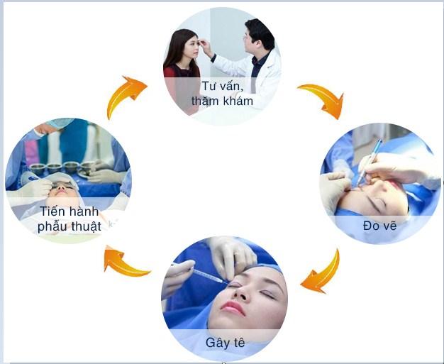 Phẫu thuật cắt mí mắt8