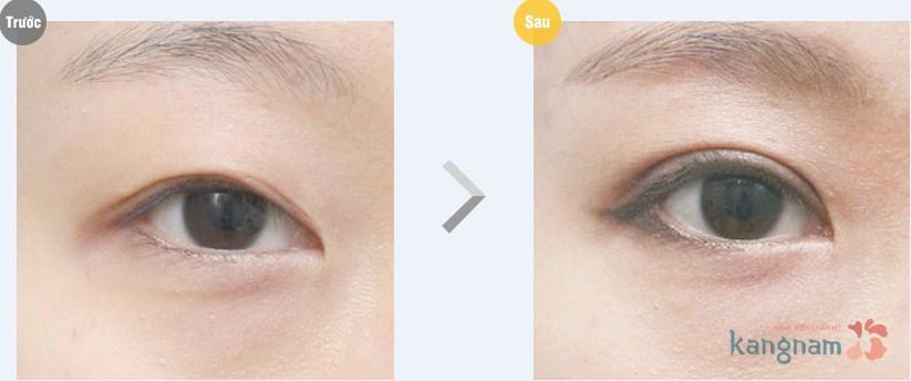 Phẫu thuật cắt mí mắt16
