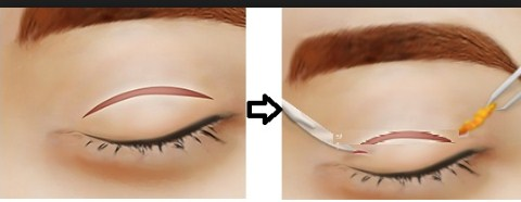 Cắt mí mắt trên loại bỏ da thừa mí mắt hiệu quả
