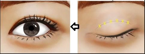 Cắt mí mắt trên giúp định hình mí mắt đẹp sang chảnh