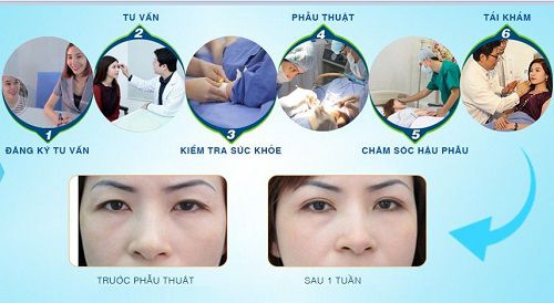 Chuyên khoa thẩm mỹ mắt tại kangnam 7