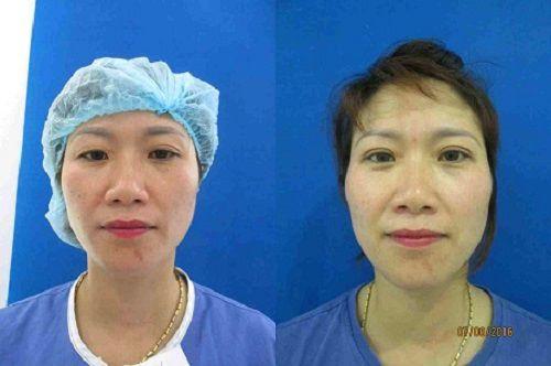 Chuyên khoa thẩm mỹ mắt tại kangnam 10