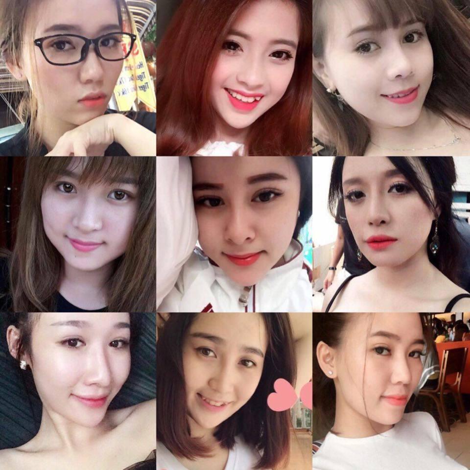 Tại sao khách hàng tin tưởng chọn lấy mỡ mí mắt trên tại Kangnam