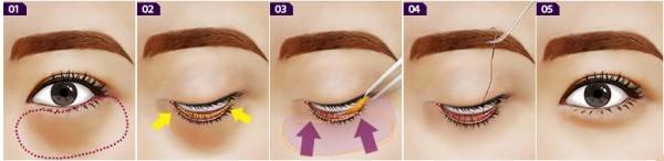 Quy trình lấy mỡ mí mắt dưới tại Kangnam