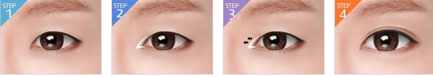 Phẫu thuật cắt khóe mắt2