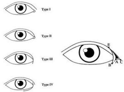 Phẫu thuật cắt khóe mắt99