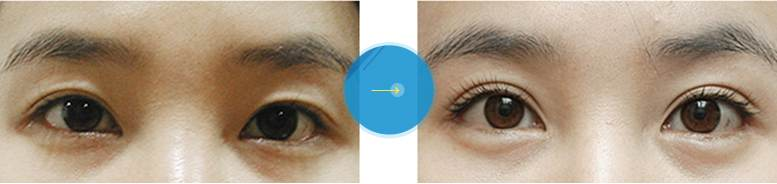Phẫu thuật cắt khóe mắt1